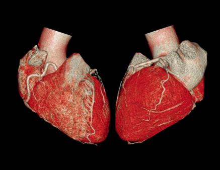 cardiac imaging