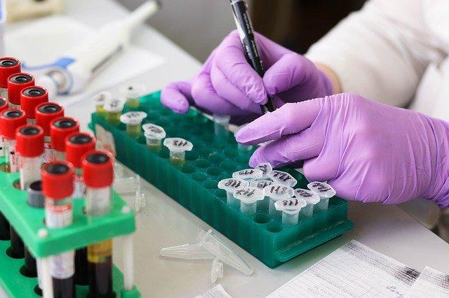 COVID-19 Antibody testing update